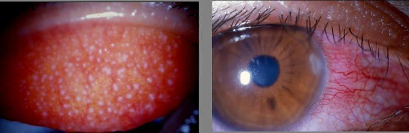 汚れたコンタクトレンズによるアレルギー症状