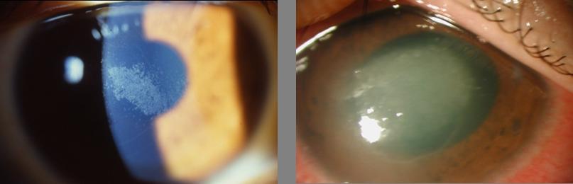 汚れたコンタクトレンズによる角膜障害