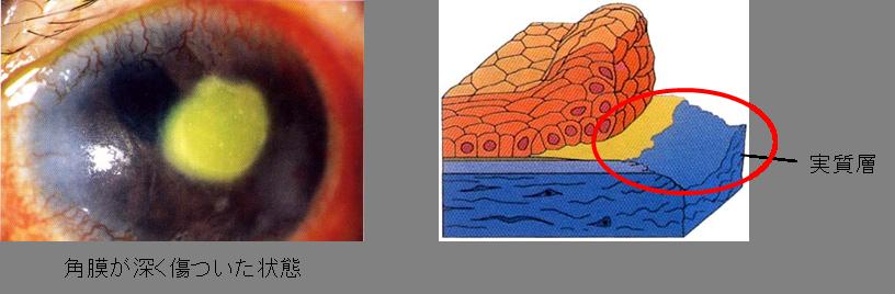 角膜潰瘍(かくまくかいよう)