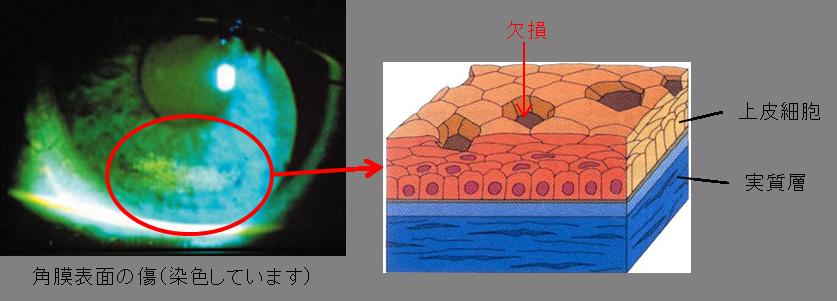 角膜表面の傷